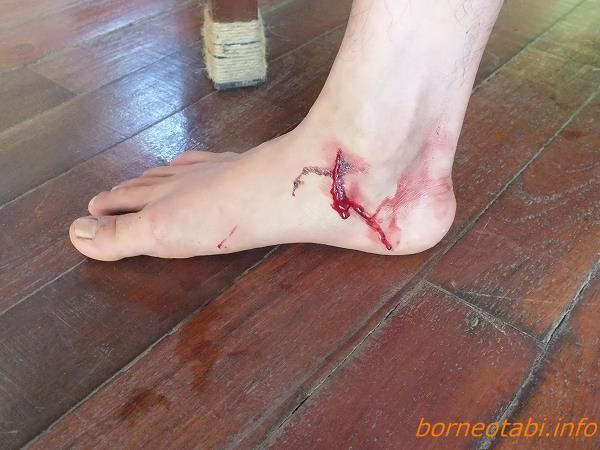 ヒルに食われた跡、ガイドの足です。2012年7月2日 ダナンバレー